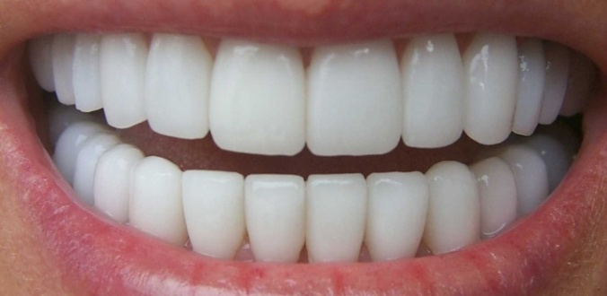 perfect-teeth_316-9